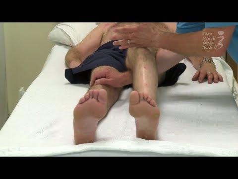 ASD-kezelés magas vérnyomás esetén
