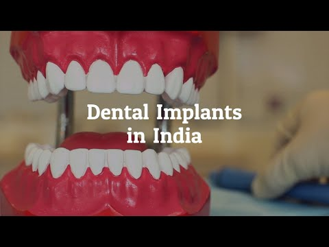 Why Go for Dental Implants in India