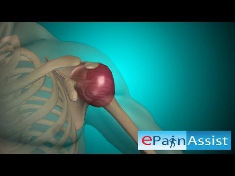 Vad fokhagyma ízületi kezelés
