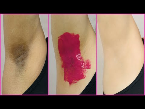 How To Lighten Dark Underarms PERMANENTLY - 100% Naturally | Anaysa Mp3