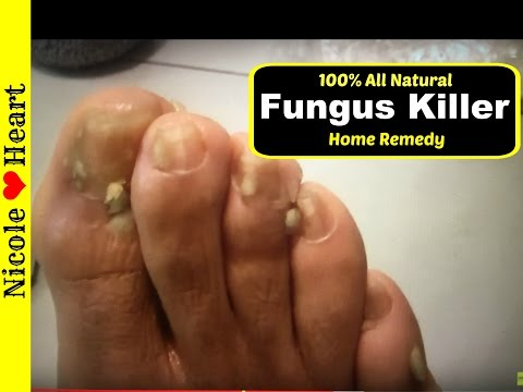 , title : 'Home Remedy for Toenail Fungus & Athlete's Foot | Natural Fungus Killer by Nicoles Heart'