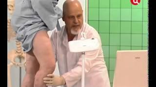 Склеротерапия - лечение варикозного расширения вен без операции