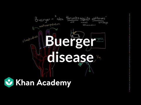 Video Buerger disease | Circulatory System and Disease | NCLEX-RN | Khan Academy