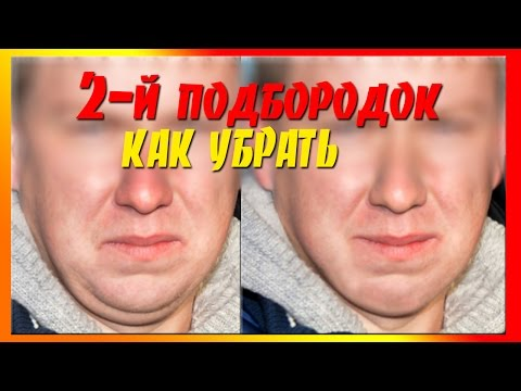 Кавказский морозник для похудения противопоказания