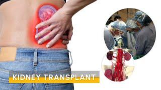 Video kidney transplant