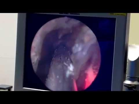 Trocken Orgasmus nach Prostataentfernung