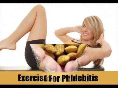 Achillea a varicosity
