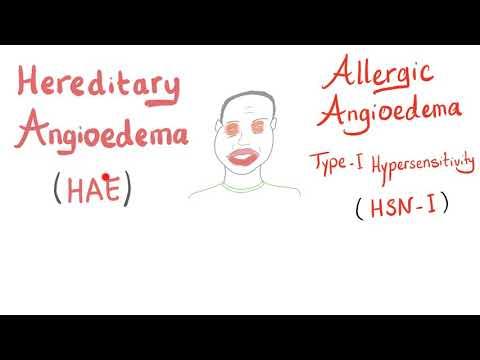 Hipertenzija dominantan