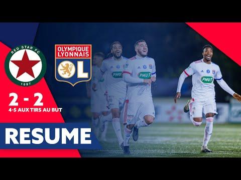 ليون في ربع نهائي كأس فرنسا