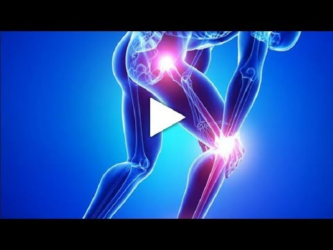 Polyosteoarthrosis Gelenke 3 Grad