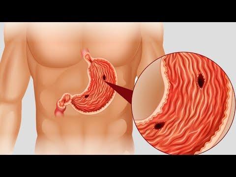 Как РАСПОЗНАТЬ у себя СИМПТОМЫ ЯЗВЫ желудка