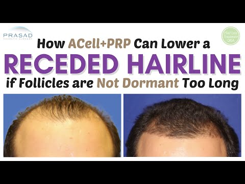Video How a Receding Hairline can be Saved and Restored if Treated in Time