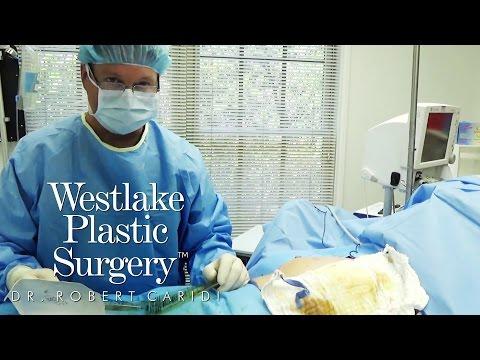 Procedure Video: Dr. Caridi Explains Keller Funnel Technique