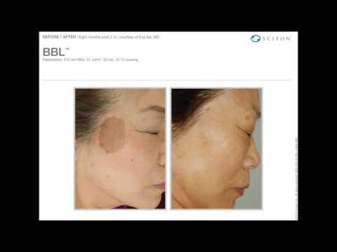 Posti di pigmentary dopo unallergia
