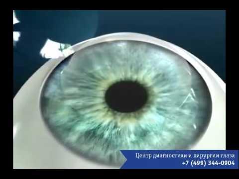 Слепой операция по восстановлению зрения