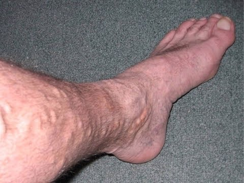La vena è diventata divisa su una gamba