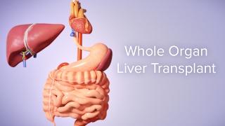 Pediatric Liver Transplant SurgeryVideo In India