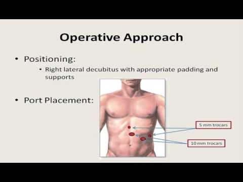 Laparoscopic Subtotal Splenectomy
