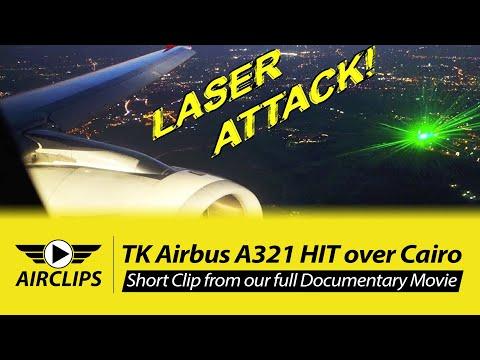 Die Laserepilation auf der Person in omske