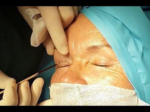 Upper Eyelid Surgery - Dr Allen Rezai