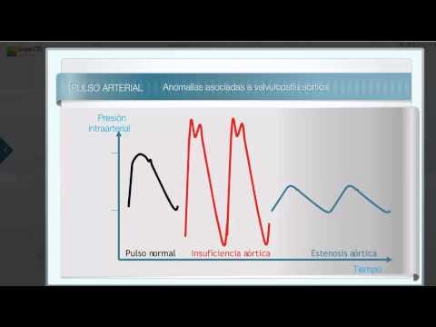 La hipertensión altitud