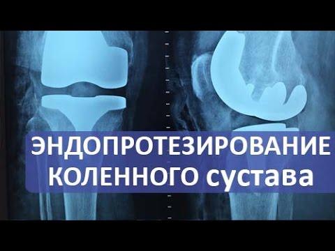 Эндопротезирование коленного сустава. Операция эндопротезирования коленного сустава.