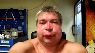 Смотреть онлайн Как человек себя ведет, когда его кусает пчела в лицо