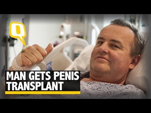 Penisul este îndoit