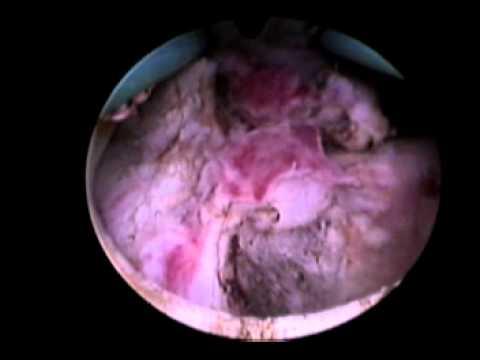 Alisheh. Behandlung von Prostatitis