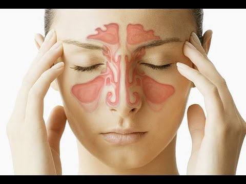 Signs and Symptoms of Sinus Infection | Sinusitis