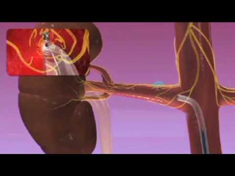 Sie die Symptome einer hypertensiven Krise entfernen