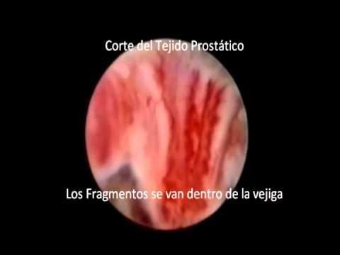 Supraks atsauksmes par prostatīts