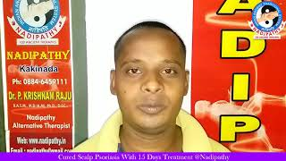 Cured Scalp Psoriasis With 15 Days Treatment @Nadipathy™