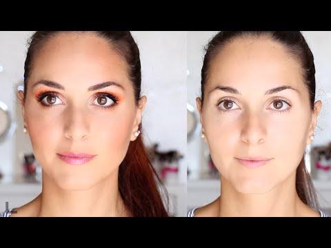 Modelli con violazione di pigmentazione di pelle