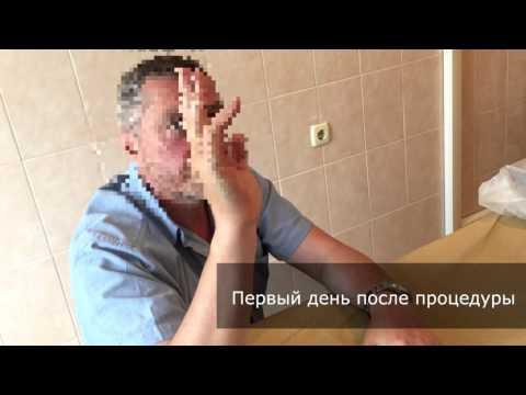 Контрактура Дюпюитрена - Липофилинг- Петах А.В. Гришай С.Е.