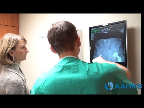 Hip Replacement Surgery - Mini-Posterior Approach Video