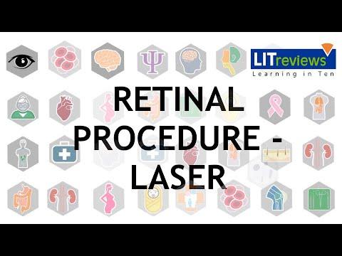 coagulare cu lasere pentru echipamente oftalmice medicament de corectare a vederii
