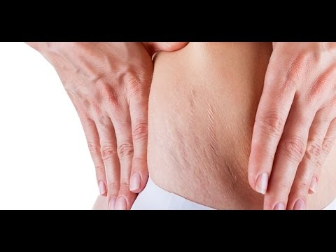 Cara menghapus seorang wanita perut besar 45 tahun