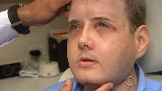 Face transplant recipient thriving one year after surgery