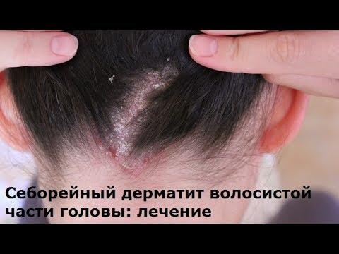 Дерматит - симптомы и лечение.