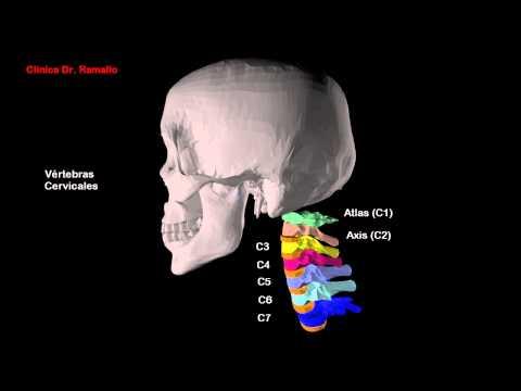 Osteocondrosis cervical hombro de vídeo