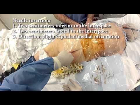 Eine Reihe von Übungen für die Behandlung von Rückenmuskulatur