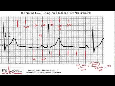 ECG Interpretation, Determining Rate, Part 6-3