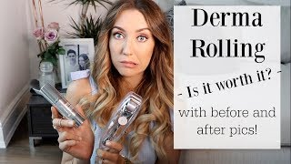 Derma Roller Review with Before and After Pics!