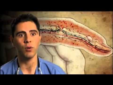 Artroza stawu biodrowego bóle stawów
