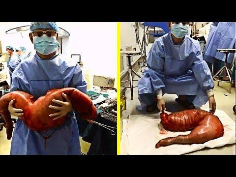 Die Würmer bei der Pankreatitis