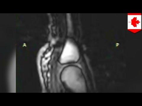 Operacja McBride z palucha koślawego