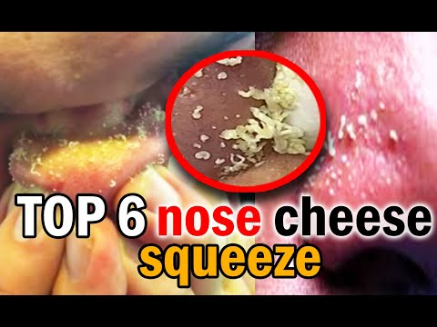 Top 6 Nose Cheese Squeeze Compilation