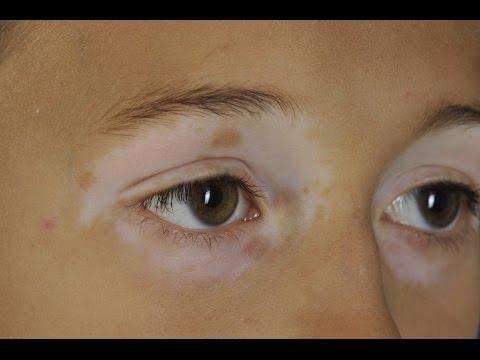 Die Gesichtscreme der Schutz vor den Sommersprossen