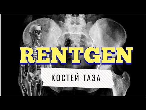 Рентген таза: учимся читать рентген костей таза📖🙈